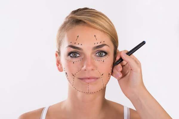 Ritidectomia facial