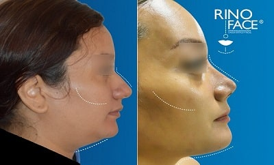 casos de éxito - liposucción facial de papada y rinoplastía