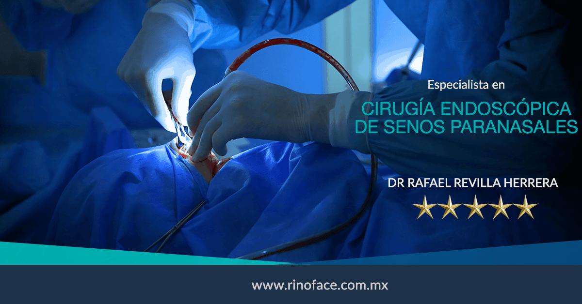 Dr-Rafael-Amador-Revilla-Herrera-Cirujano-Otorrinolaringologo-especialista-en-Cirugia-Endoscopica-de-Senos-Paranasales-en-Mexico-v001-compressor