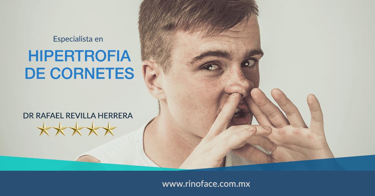 Dr-Rafael-Amador-Revilla-Herrera-Cirujano-Otorrinolaringologo-especialista-en-Hipertrofia-de-Cornetes-en-Mexico-v001-compressor