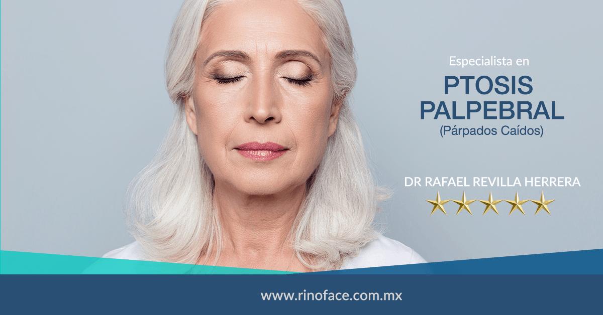 Dr-Rafael-Amador-Revilla-Herrera-Cirujano-Otorrinolaringologo-especialista-en-Ptosis-Palpebral-en-Mexico-v001-compressor