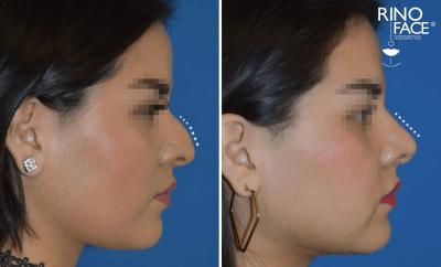 nariz aguileña corregida con una cirugoa de nariz