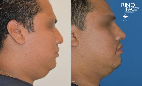 Liposuccion facial antes y despues hombres