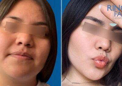 caso de exito de liposucción facial de papada y mejillas en veracruz