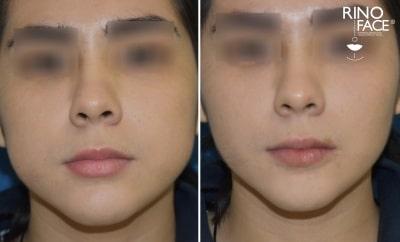 cirugia estetica de bichectomia