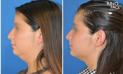 cirugia estetica de liposuccion de papada